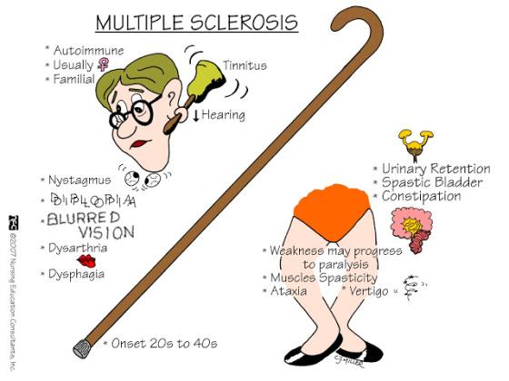 Credit to Nursing Education Consultants Inc, https://docireport.files.wordpress.com/2013/08/multiplesclerosis.jpg
