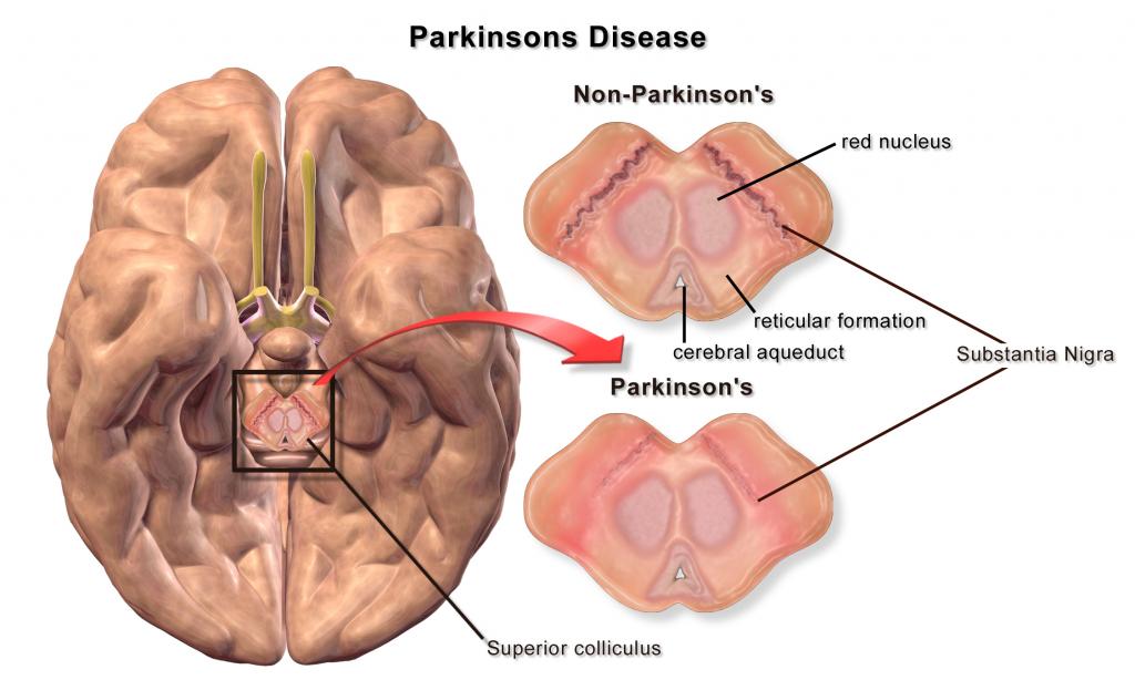 Blausen_0704_ParkinsonsDisease