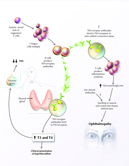 Mechanism of Grave's Disease. Chelsey Sheppard; Labelled for noncommercial reuse