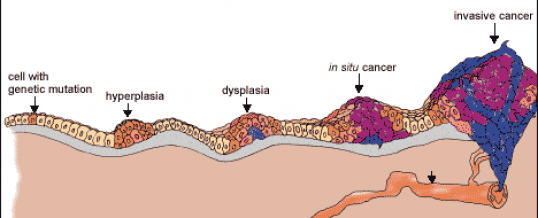 Figure 2. Uncontrolled proliferation (metastases) of cancer cells in a sequential order within the body.http://www.webdicine.com/3-stages-of-cancer-development.html