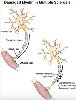 Comparison of a healthy neuron to a damaged neuron due to MS. licence under creative commons.