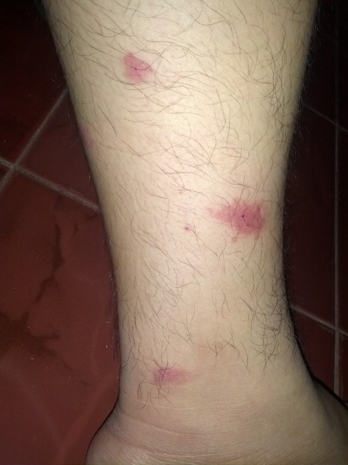 Man's leg with several mosquito bites. Image by Renzoy16, CC BY-SA 3.0.