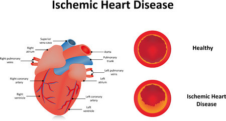 ischemic-heart